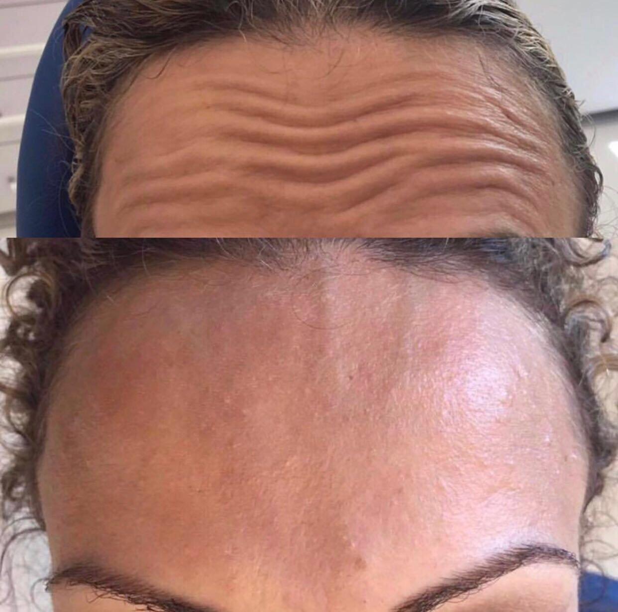 بعد مشاركتها بمؤتمر الطب التجميلي في باريس... الاء عبد الحي: دائما هنالك جديد بمجال الطب التجميلي