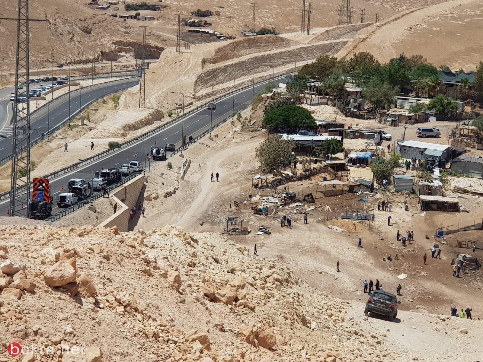 إصابة 35 مواطناً إثر قمع الاحتلال للسكان والمتضامنين في (الخان الأحمر)