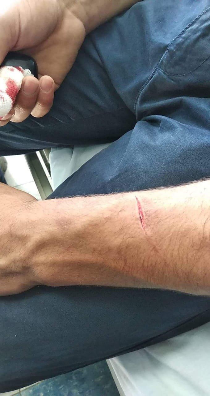 إصابات جراء شجار عنيف في جامعة النجاح بنابلس