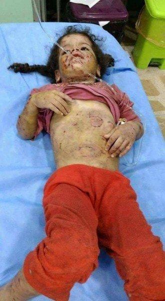 بالصور: وحش بشري .. أب ينهش جسدي طفلتيه ككلب مسعور في العراق