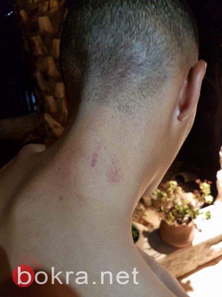 عناصر شرطة بالقدس يعتدون على الشاب يزيد جبارين من أم الفحم انتقامًا لكميل وهايل!