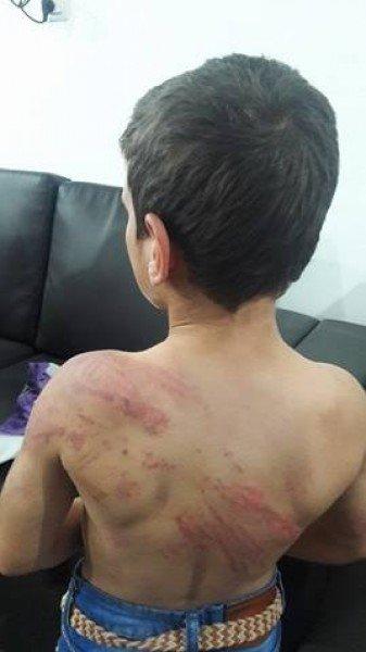 غزة: الطفل المُعنف يكشف تفاصيل قاسية