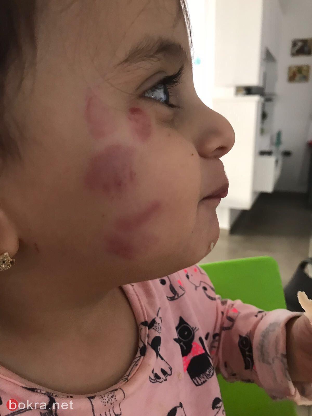 اثار رابي لـبكرا: بكيت بأعلى صوتي لإصابة ابنتي