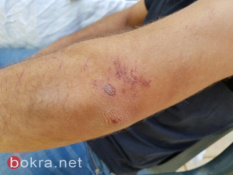الطيبي يستجوب وزير الأمن الداخلي في أعقاب اعتداء أفراد الشرطة على محمد ناطور *
