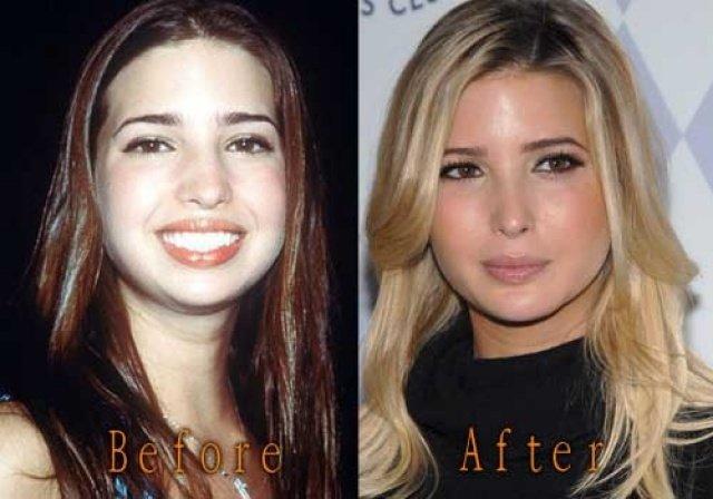 هكذا كانت ايفانكا ترامب قبل عمليات التجميل!