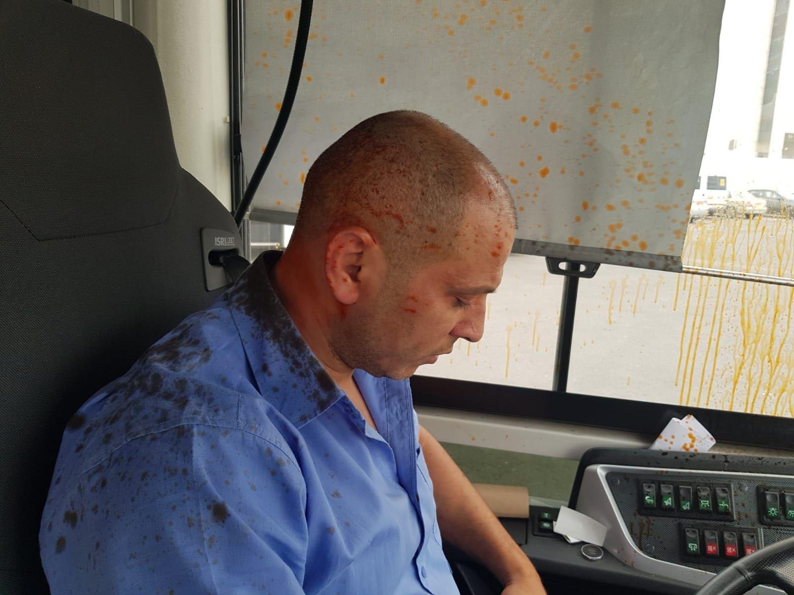 الاعتداء على سائق قسماوي من قبل 3 شبان يهود متطرفين