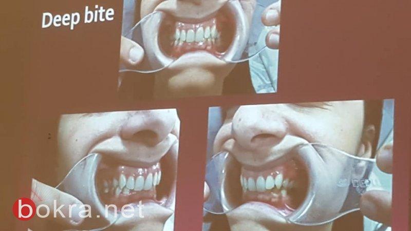 جمعية أطباء الأسنان العرب: محاضرة حول مشاكل المفصل الفكي ومشاكل الشخير الحاد وانقطاع التنفس اثناء النوم