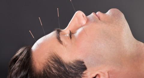 بحث: الوخز بالإبر قد يكون أفضل علاج للصداع