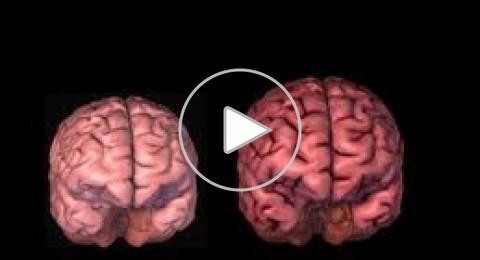 علماء يؤكدون إمكانية التقليل من أثر الشيخوخة على الدماغ