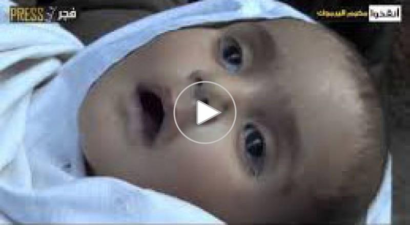 الجوع يحصد روح الرضيع عارف عبدالله من مخيم اليرموك