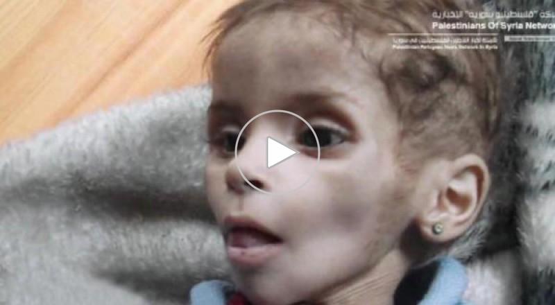 طفلة فلسطينية في مخيم اليرموك تنتظر إنقاذها من الموت