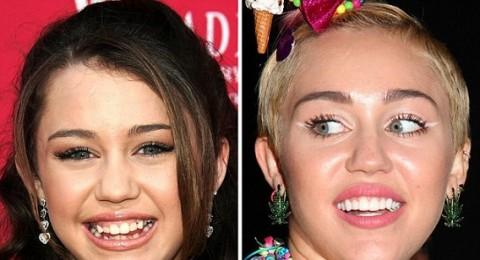 صور صادمة لإبتسامة مشاهير هوليوود قبل تجميلها
