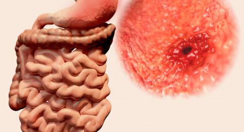 دواء يزيد من خطر الإصابة بسرطان المعدة خمس مرات... احذروه