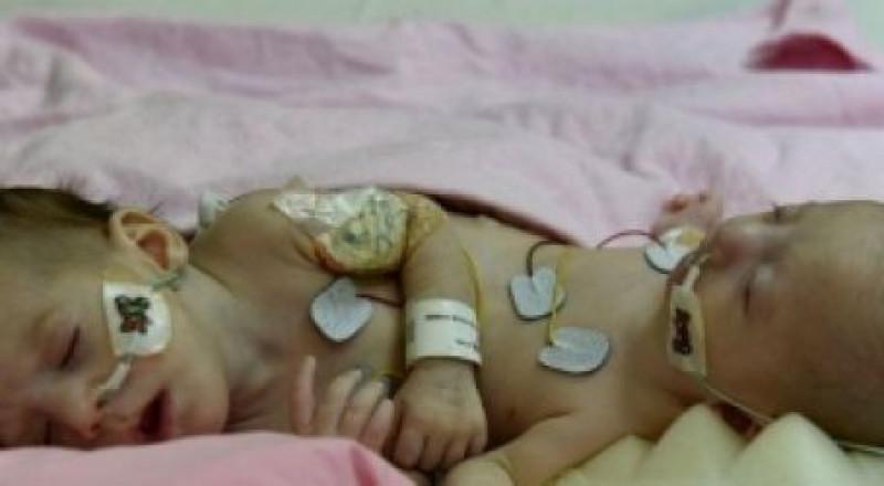 عملية فصل لتوأم سيامي فلسطيني في السعودية