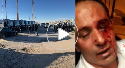 حالة من الغضب بعد اعتداء وحشي عنصري آخر على سائق بالقدس