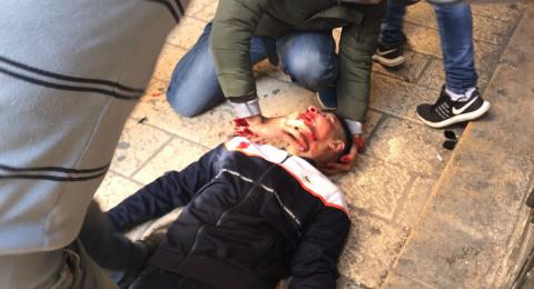 إصابة شاب مقدسي بجراح عقب اعتداء المستوطنين عليه