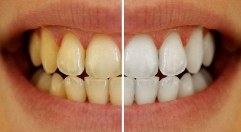 تخلّص من اصفرار الأسنان بخطوات بسيطة!