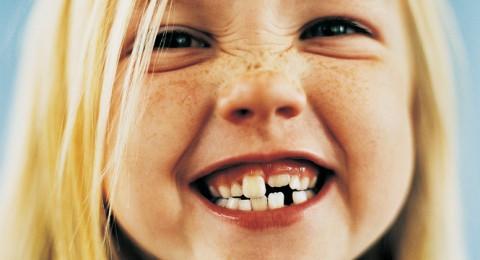 الاحتفاظ بأسنان
