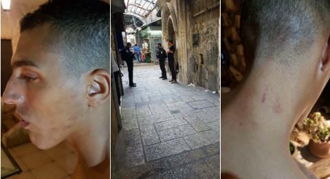عناصر شرطة بالقدس يعتدون على الشاب يزيد جبارين من أم الفحم