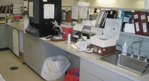 تطوير اختبار البول للكشف عن السرطان