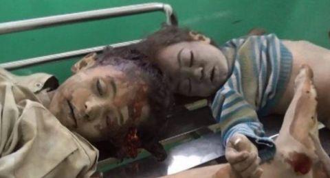 الأمم المتحدة: طفل يموت كل خمس ثوان