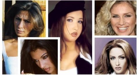 أي فنانة لبنانية نجحت في تجميل أنفها ؟