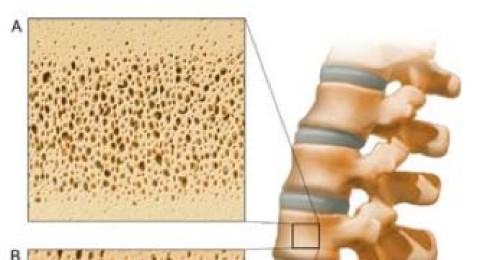 العوامل المسببة لهشاشة العظام لدى الرجال وكيفية علاجه مقدمة من مجلس الحليب