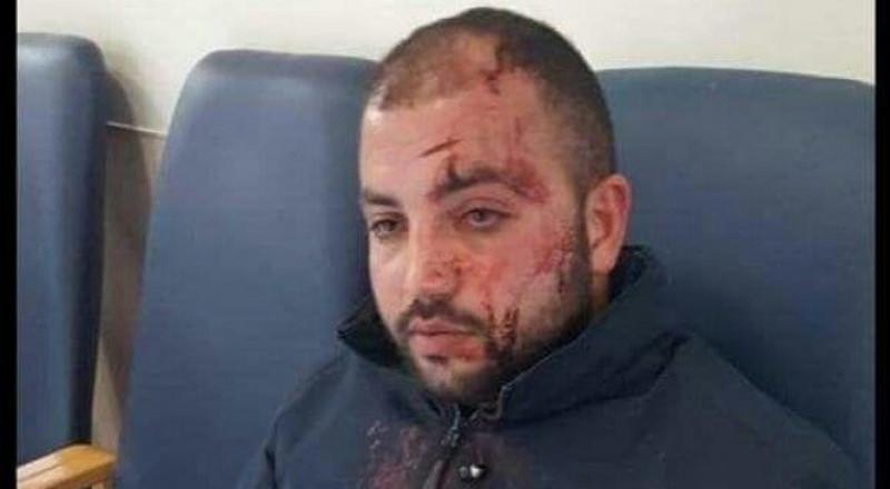 القدس: الاعتداء على سائق حافلة من قبل مستوطنين من كريات اربع