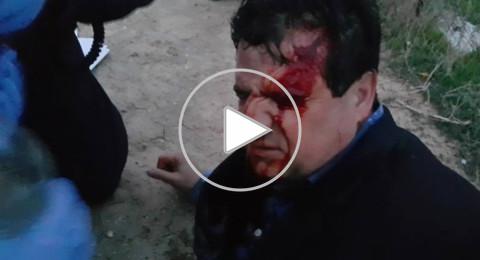 فيديو جديد يفضح تورّط الشرطة بالاعتداء على النائب أيمن عودة في أم الحيران