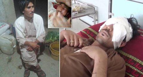 لسبب صادم.. باكستاني يقتلع عينيْ نجله بـ'ملعقة طعام' !