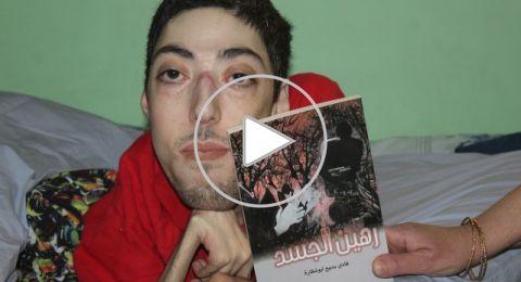 فادي أبو شقارة: قصة نجاح جديدة تثبت ان العزيمة الإرادة اقوى من الاعاقة