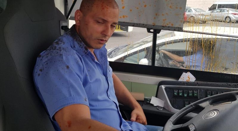 السائق المُعتَدى عليه من كفر قاسم يتحدث لـ