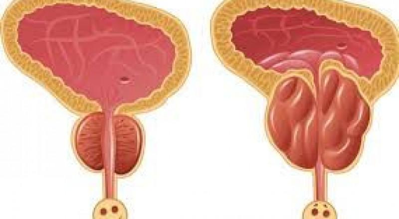 الامراض التي تصيب البروستاتا