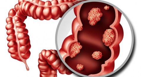 سمنة المراهقة تنذر بسرطان القولون بعد البلوغ