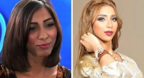 بالصور: دنيا بطمة وكارمن سليمان قبل الشهرة وبعدها