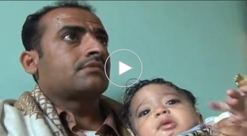 استخراج جنين في الشهر الثالث من بطن طفل يمني عمره 7 شهور