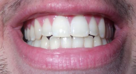 الأسنان المكسورة .. يمكن إنقاذها