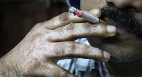 2014 : (850) شخصًا من حيفا والجليل أقلعوا عن التدخين