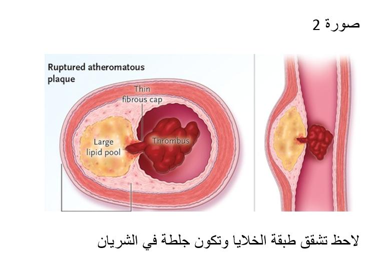 د. أرسلان أبو مخ يتحدث عن كيفية تجنب الموت من نوبة قلبية مفاجئة