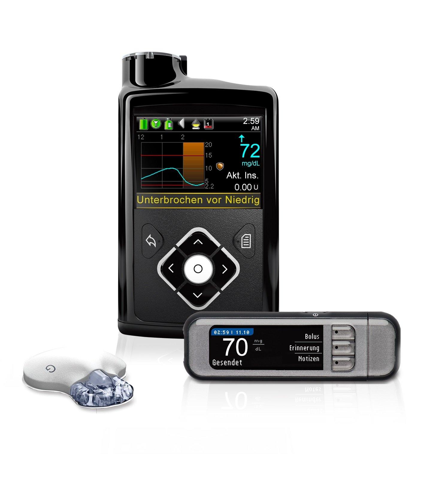 التكنولوجيا الحديثة أحدثت ثورة في طرق علاج مرض السكري