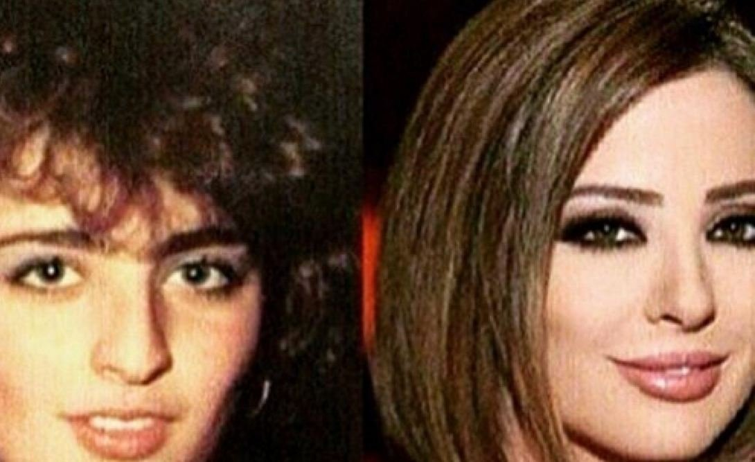صور صادمة للإعلامية وفاء الكيلاني قبل عمليات التجميل !