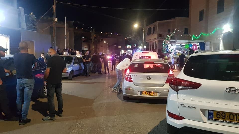 ام الفحم: اصابة حرجة لشاب بعد تعرّضه لإطلاق نار