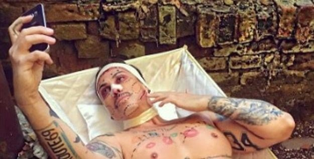 """نجم دخل لإجراء عملية تجميل لأنفه فأصيب بـ""""الانتصاب الدائم"""""""