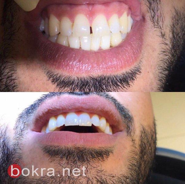 طبيبة الأسنان، عبد الحيّ لـبكرا: الابتسامة الجميلة تمنحنا الثقة بالنفس
