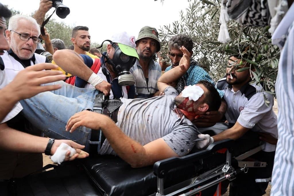 إصابة 146 فلسطينيا خلال مواجهات مع الاحتلال في بيتا-2