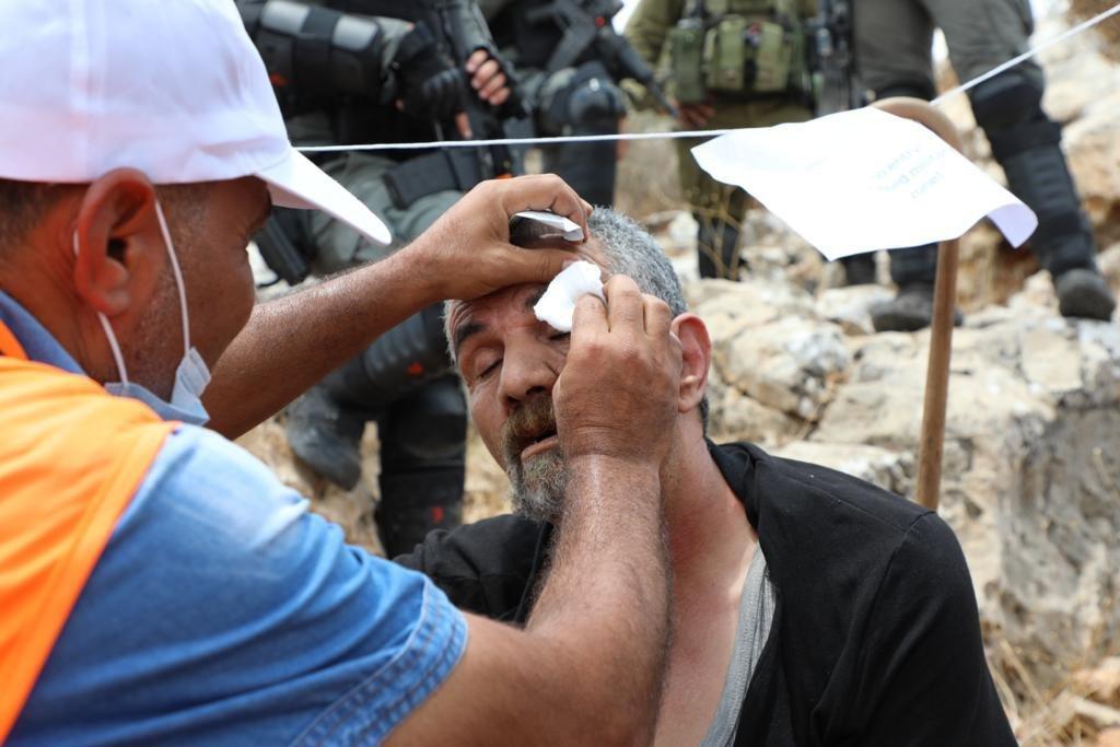 إصابة 146 فلسطينيا خلال مواجهات مع الاحتلال في بيتا-5