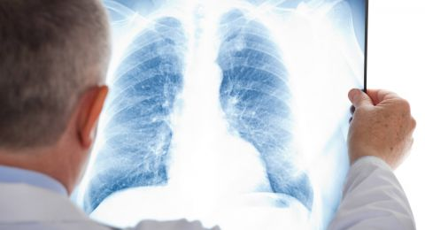 كيف نحمي انفسنا من الالتهاب الرئوي