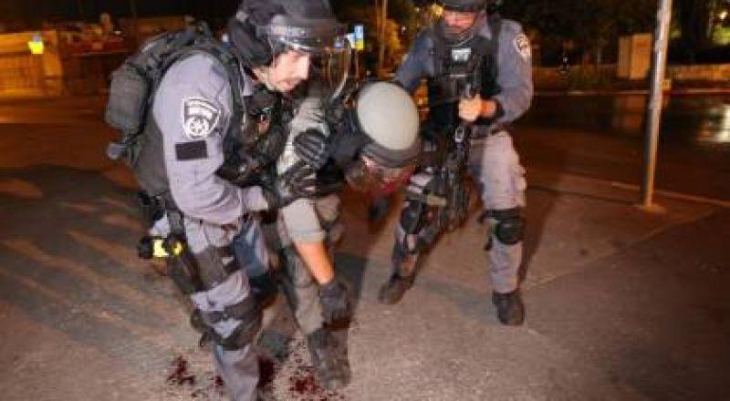 إصابة 17 شرطيًا إسرائيليًا في مواجهات الأقصى والقدس