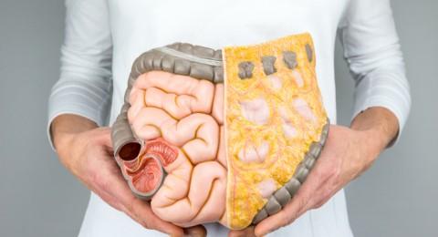 علاج طبيعي لتنظيف القولون من 13 كلغ من السموم