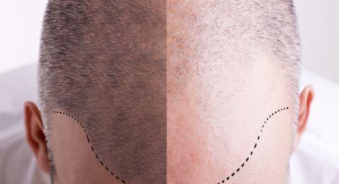 معلومات مهمة عن عملية زراعة الشعر